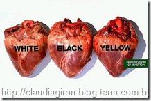 Oliviero Toscani UCB Hearts